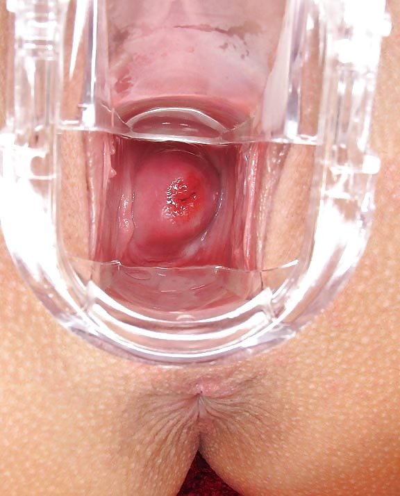 Какая женская вагина внутри — pic 11