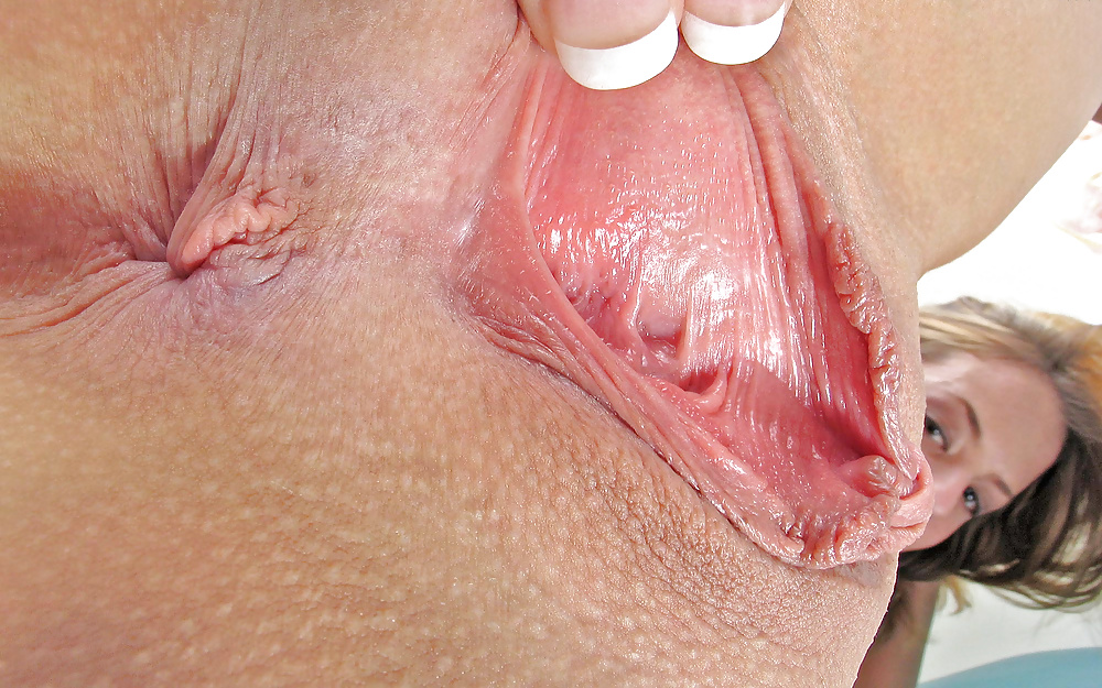 Female genital sores