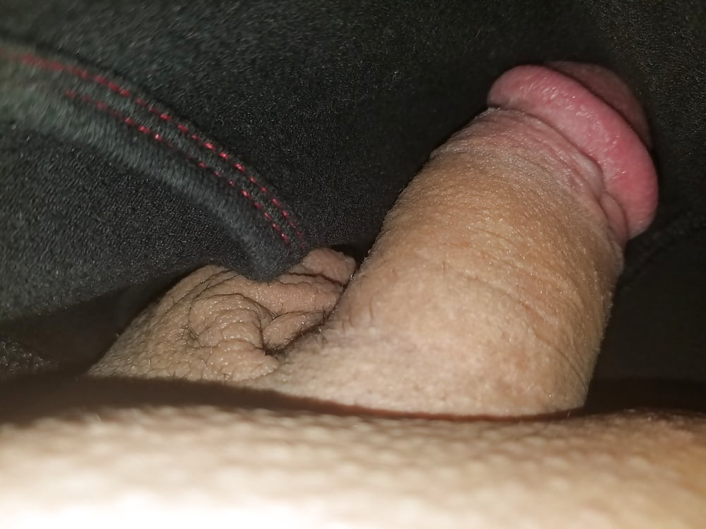 Pictures of a sex change operation from male to female-9852