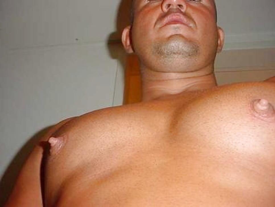 Puffy Nipples Gynecomastia Treatment Beverly Hills Newport Beach
