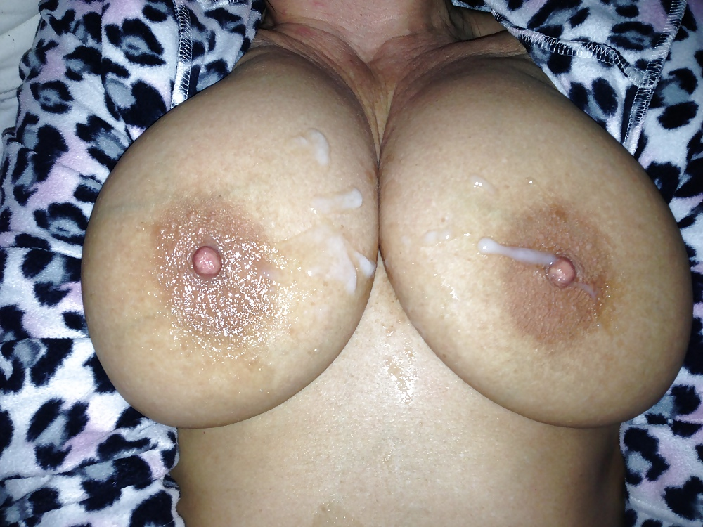 Woman with moles shows tits nude girls pictures