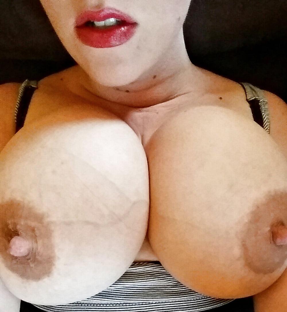 Swollen Milky Tits