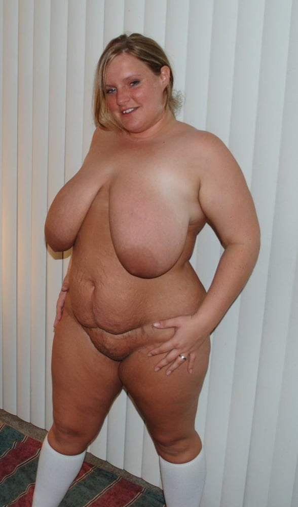Bbw With Cellulites And Stretch Marks Xhams Porntrex 1