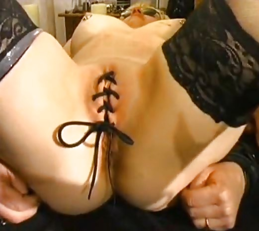 amateur-with-sewn-pussy-massage-pics-thumbnail