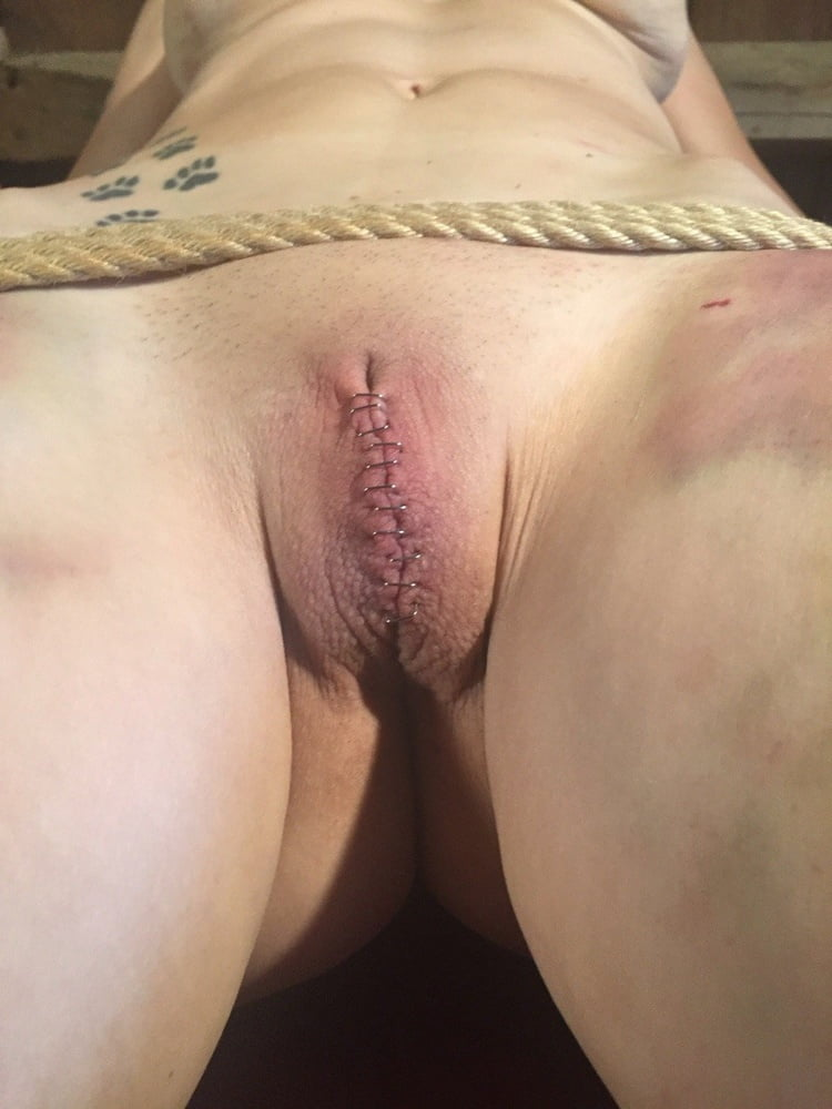 Amateur with sewn pussy