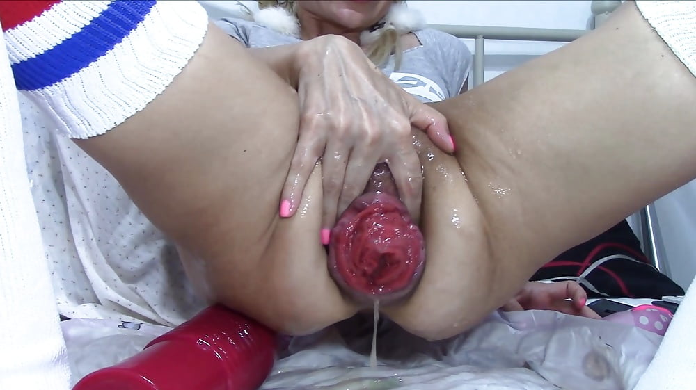 Remedy for vaginal prolapse