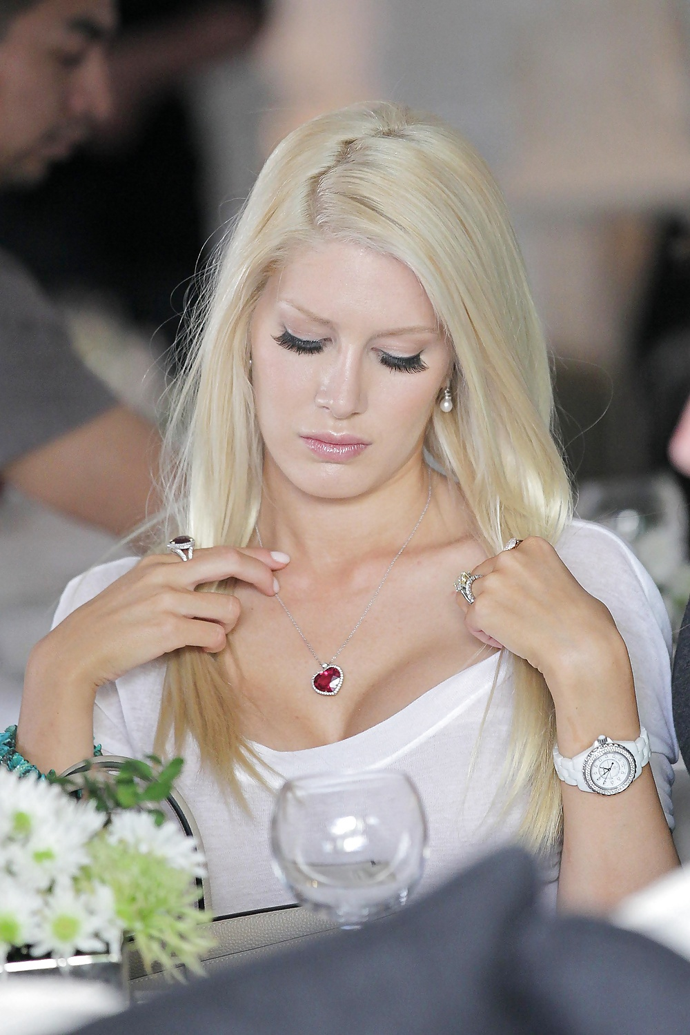 Heidi montag removes breast implants that were falling out of her skin