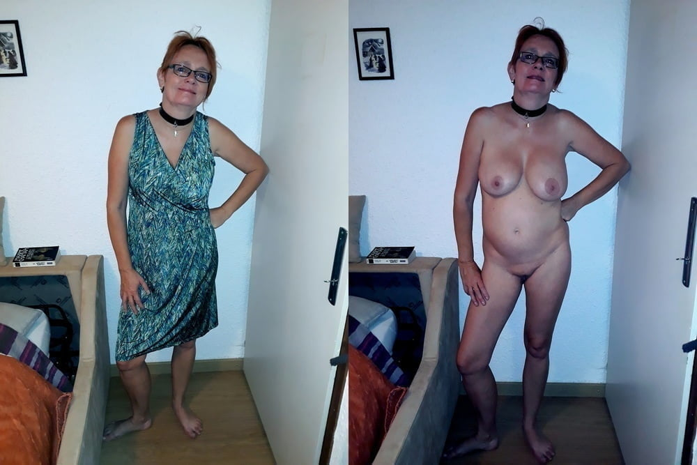 BEFORE AFTER 26 - 105 Pics