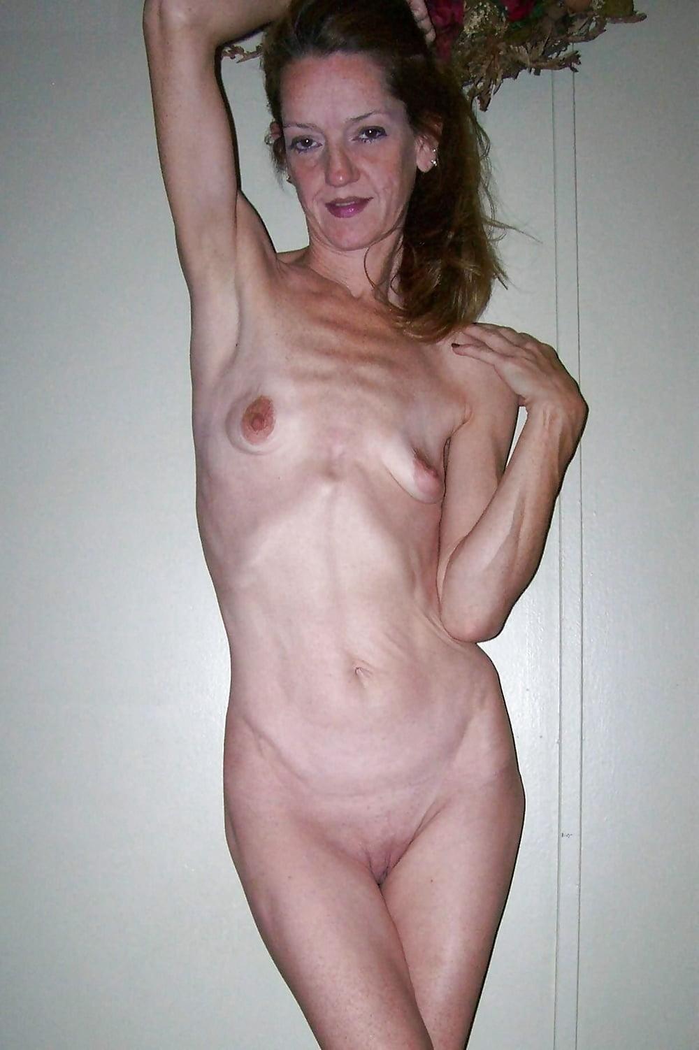 ugly-skinny-girls-nude
