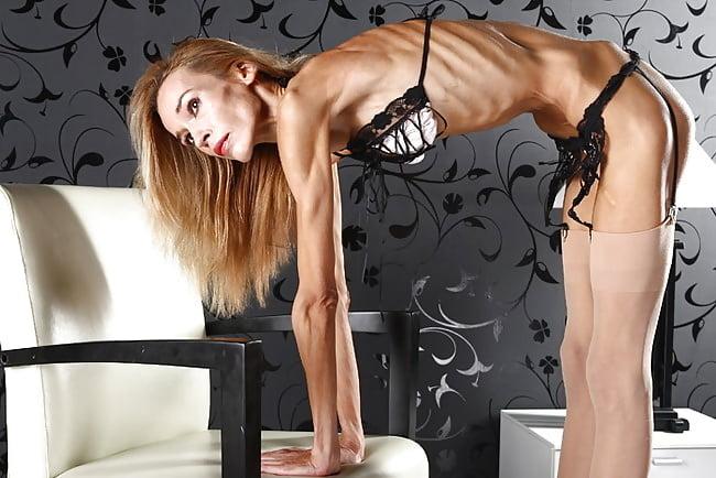 anorexic-slut
