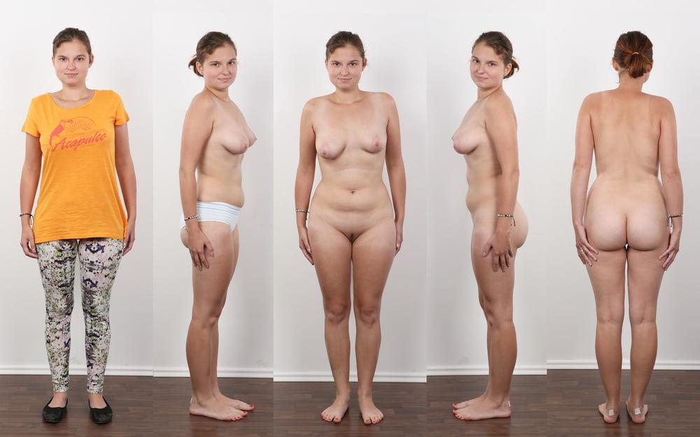 Mature Women With Below Knee Amuptation Stock Photo