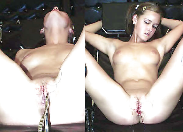 Naked girls pussy sewn, video tube max hardcore videos