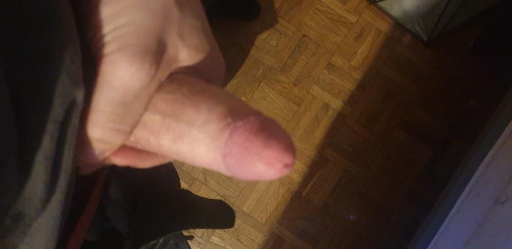 Penisvergrößerung