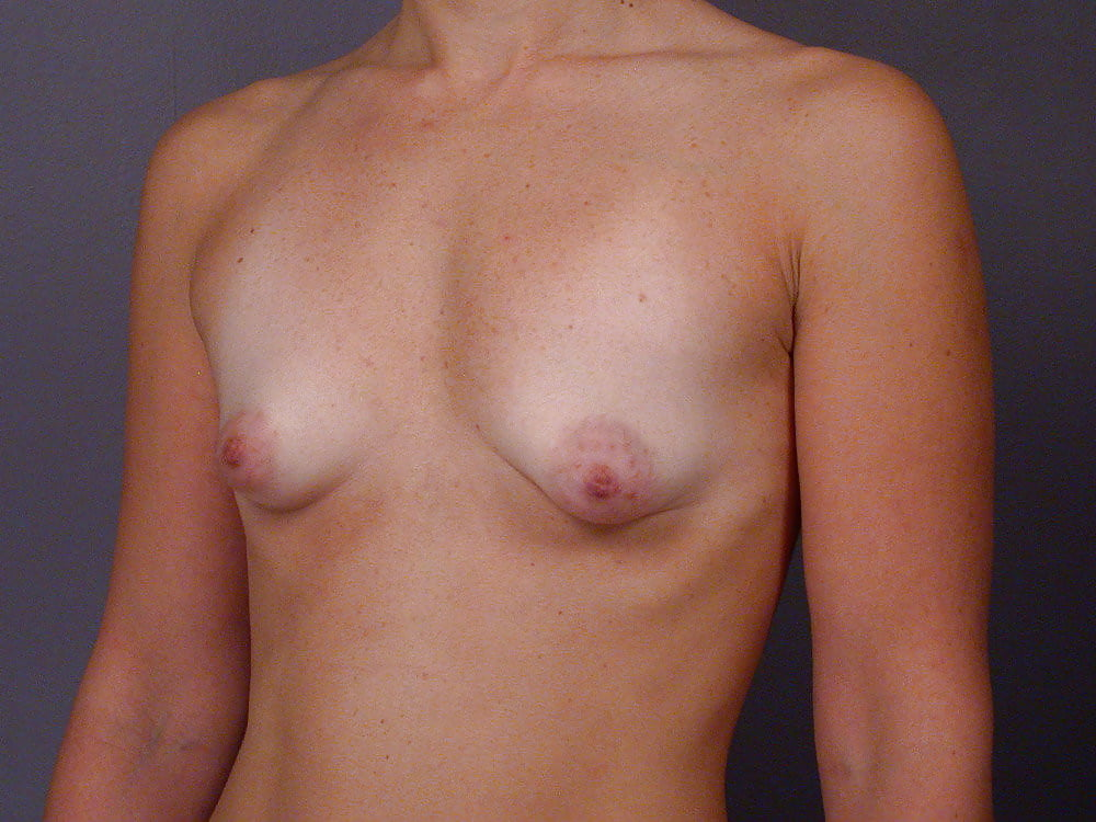 pussy-lopsided-tits-pics-services