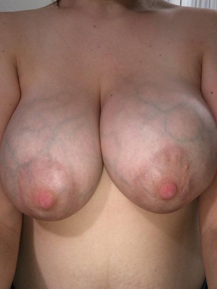 Veiny Boob Pics