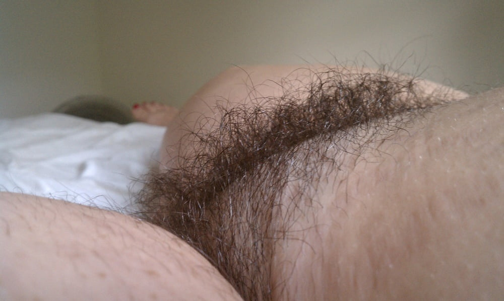 Mature asian pubic hair transplant pictures having