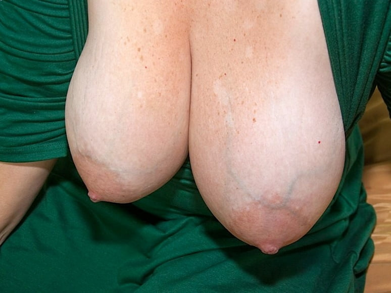 Chest Sclerotherapy
