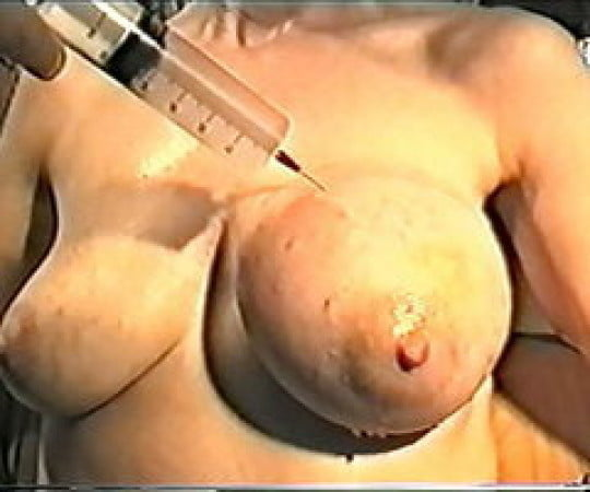 Fisting Gay Teen Boy Picture Free First Time Saline Injection For Caleb