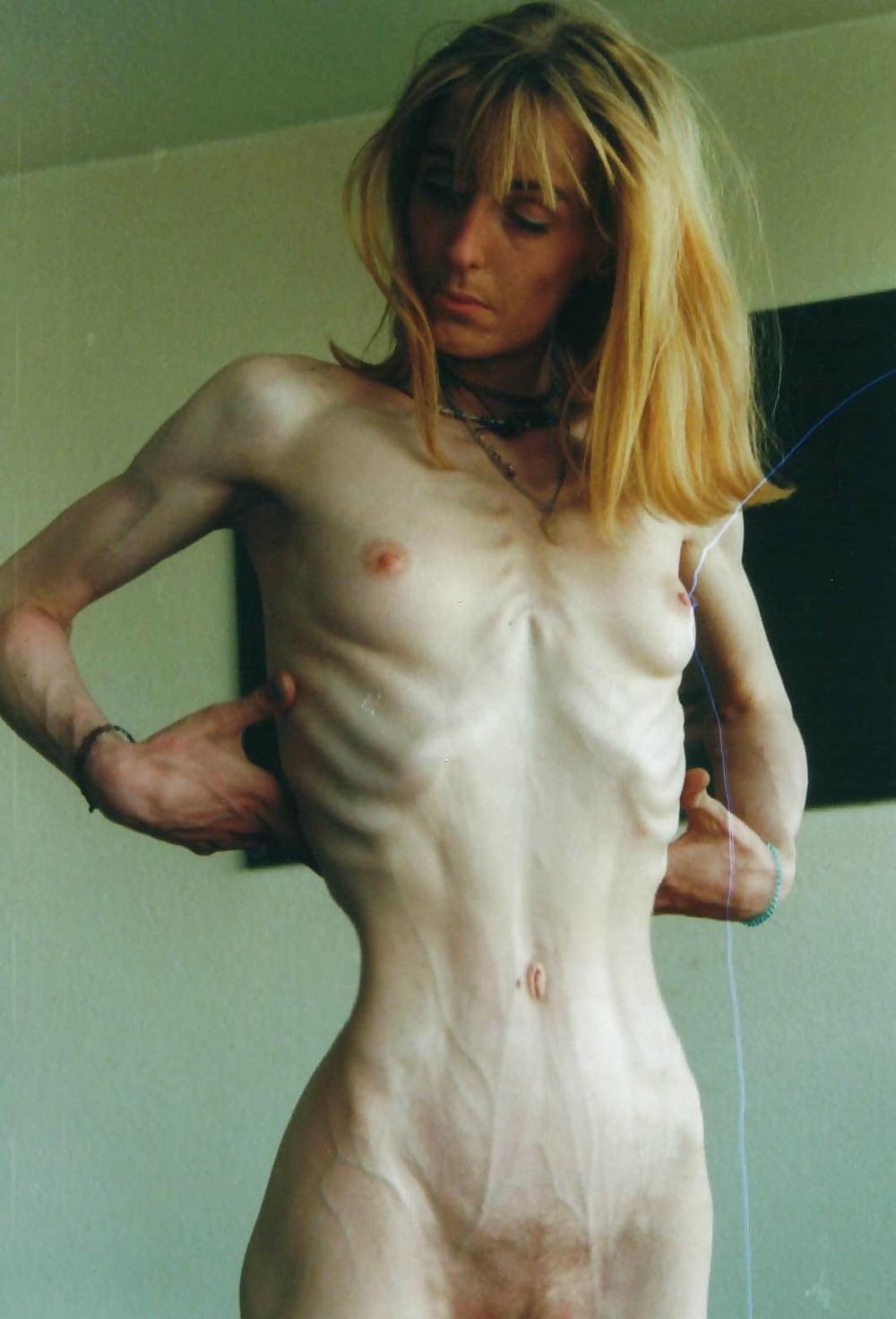 anoreksiya-foto-golih-devushek-pushki-seks-video
